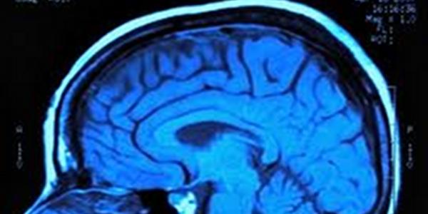 Your Brain on Paleo